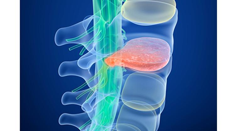 Bulging Disk in Neck & Back Treatment Center
