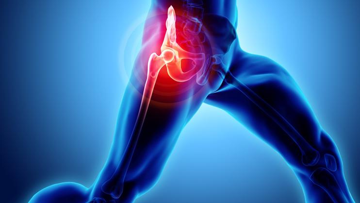 Hip Arthritis Pain Treatment Without Surgery