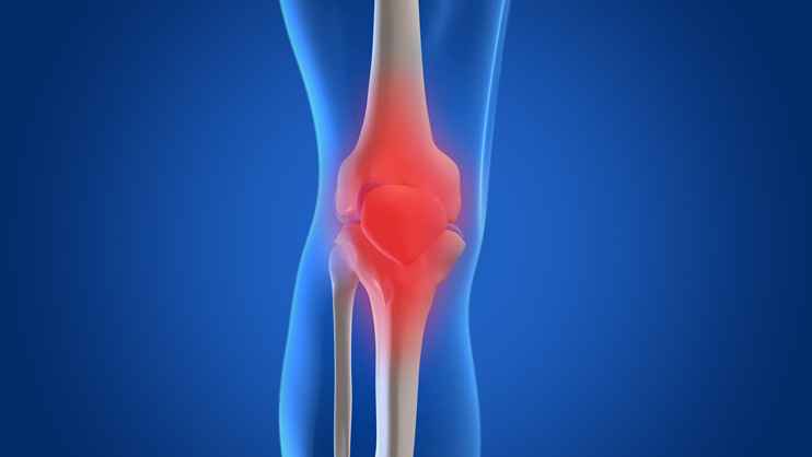 Specialist Doctor For Osteoarthritis Treatment